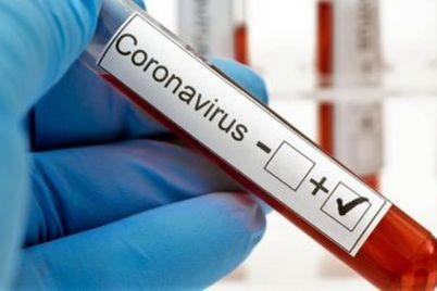 Coronavírus-foto-Divulgação.jpg
