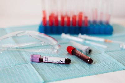 full-vials-of-blood-near-various-medical-equipment-for-4226924-scaled.jpg