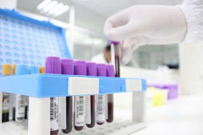 testes-de-covid-19-pelo-laboratorio-burigo-apontam-cerca-de-15-de-resultados-positivos-5.jpg